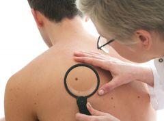 В зоне внимания дерматологов – кератоз