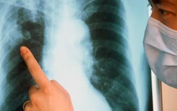 Заболеваемость туберкулезом, даже снизившись, осталась выше среднего по стране