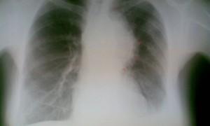 Курение оказалось фактором риска рака легкого и для диабетиков