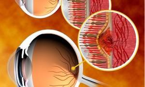 Минздрав США расширил спектр применения препарата ранибизумаб
