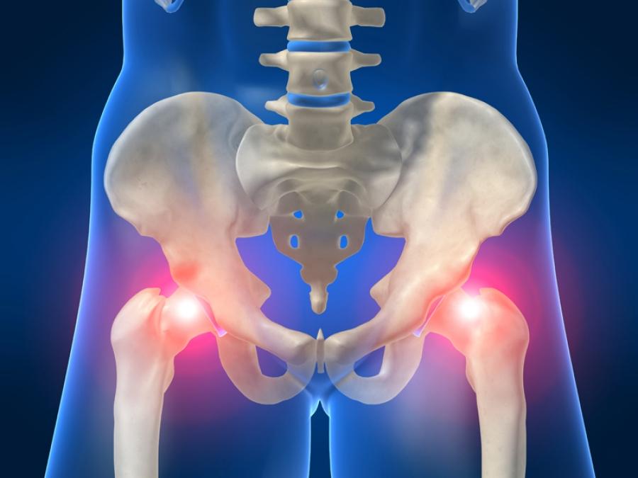 Продолжительность госпитализации по поводу перелома тазобедренного сустава связана с риском смерти