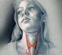 Гипертиреоз и лишний вес: ограниченное влияние