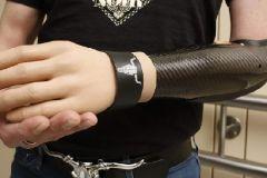 Успехи в протезировании: бионическая рука сильнее человеческой