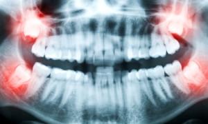 Рентген зубов увеличивает вероятность рака мозга