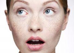 Пятна на коже: воспалительная пигментации