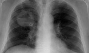 Рак легких связан с вирусом папилломы