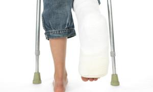 Переломы ноги