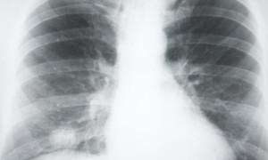 Новый тест позволяет диагностировать рак легких без биопсии