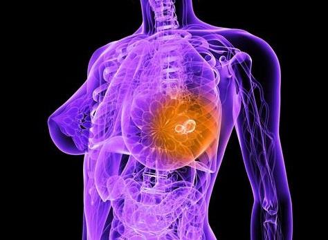 Наследственный характер РМЖ не является независимым фактором риска развития рецидива этого заболевания