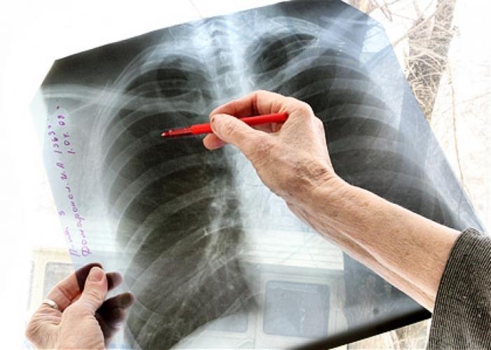 В Рославльском районе Смоленщины растет заболеваемость туберкулезом