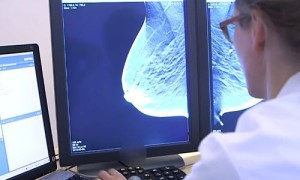 3D-скрининг рака груди обнаруживает заболевание на 40% чаще