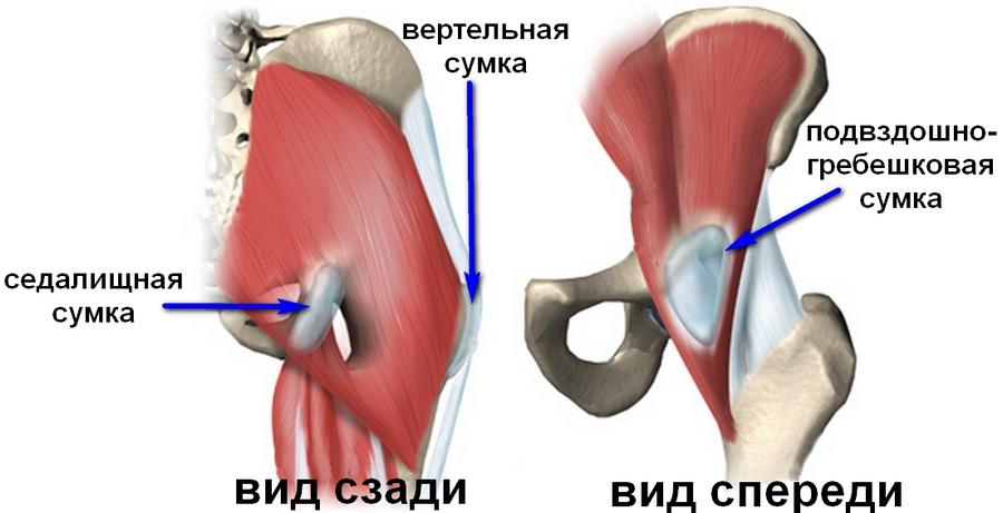 Как и чем лечить бурсит тазобедренного сустава