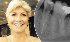 Британка прожила 2 года с обломком зубоврачебного «сверла» в челюсти