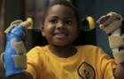Хирурги впервые в мире провели двухстороннюю пересадку рук ребенку