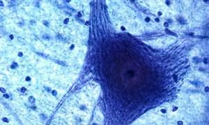 Уточнен механизм развития нейропатической боли