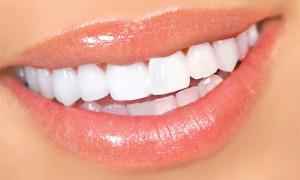 Домашнее отбеливание зубов: советы
