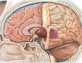 Опухоль глиобластома: симптомы, лечение и диагностика