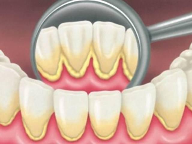 Что такое зубной камень