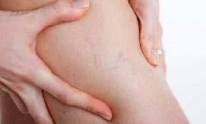 Сосудистая сетка на ногах: факторы риска