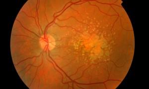 Ученые запустили КИ стволовых клеток в терапии возрастной макулярной дистрофии