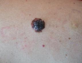 Антиоксидантные добавки способствуют развитию меланомы