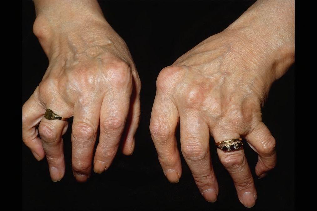 Обнародованы результаты очередного этапа клинических испытаний олокизумаба для терапии ревматоидного артрита с тяжелым упорным течением и недостаточным ответом на стандартное лечение