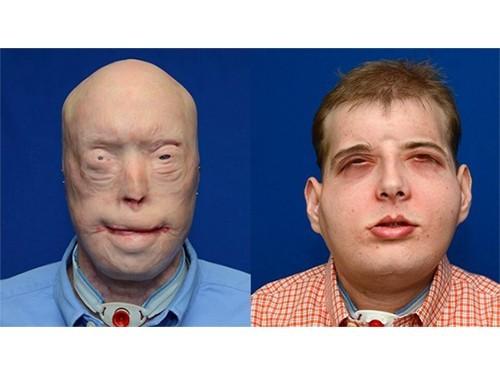 В США проведена сложнейшая операция по пересадке лица