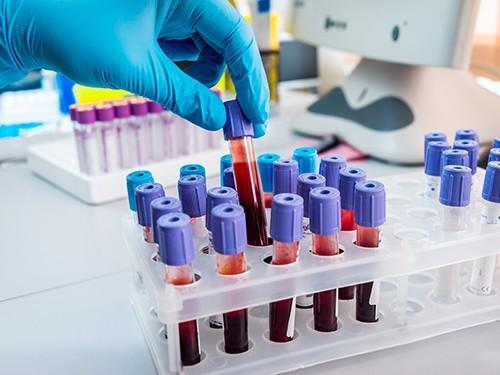 Лечение рака предстательной железы может стать более эффективным