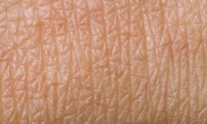 Найден способ борьбы с воспалением при заживлении ран