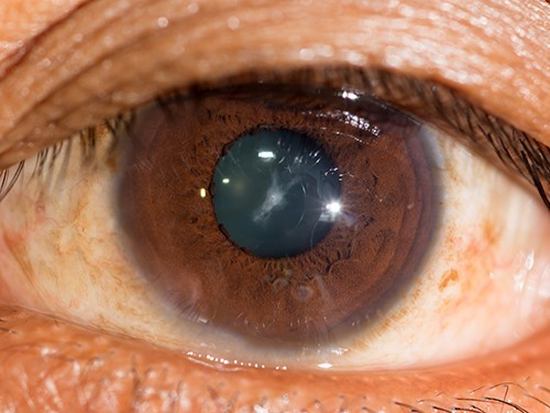 Глазные капли против катаракты успешно протестированы на мышах