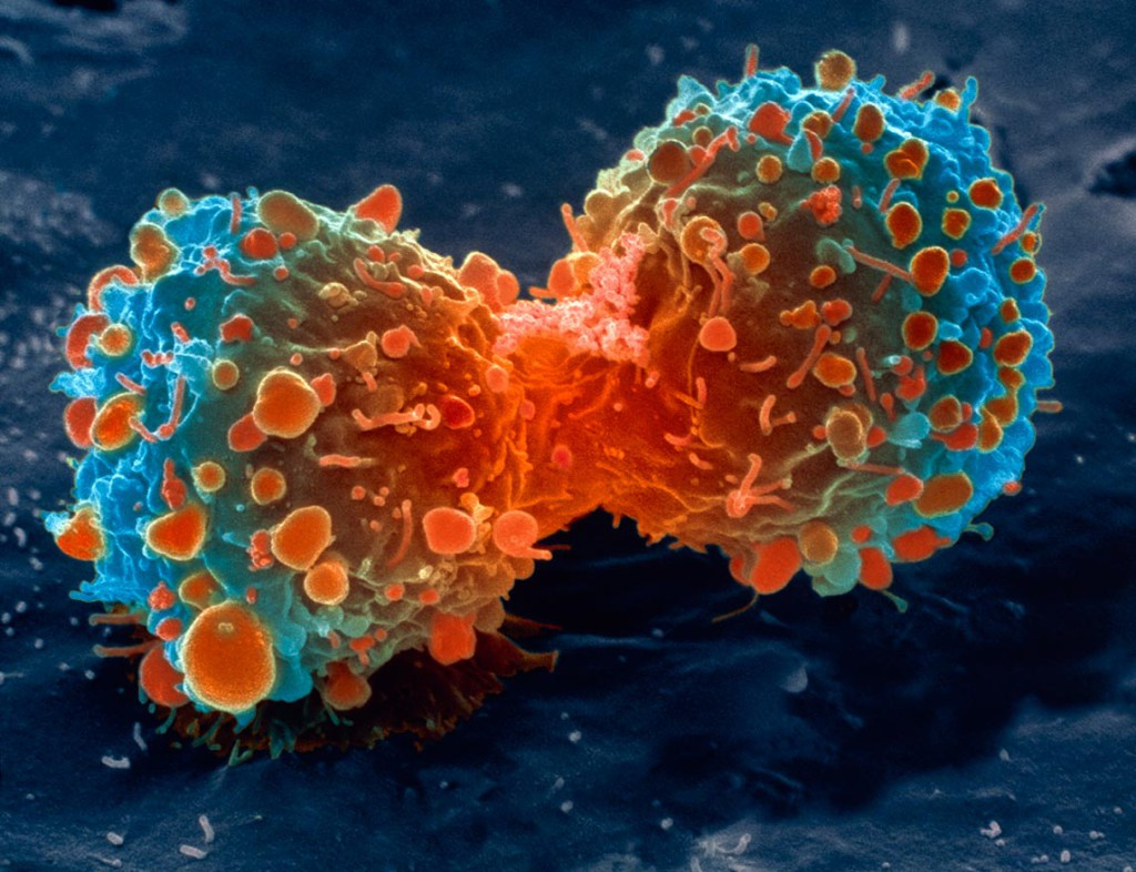 Половину раковых заболеваний кожи можно предотвратить иммунными кремами