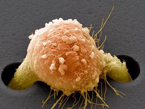 Избыточный вес и рак имеют общее происхождение
