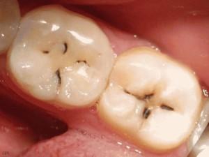 Профилактика кариеса: как остановить и предотвратить кариес зубов