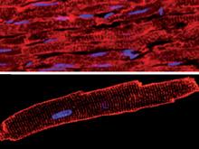 Ученые обнаружили ген, повышающий риск заболеваний мышц и сердца