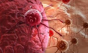 Лучшее средство в борьбе с раком: похудение