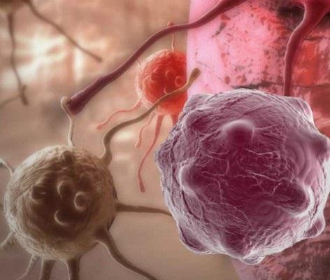 Ученые рассказали, почему люди болеют раком