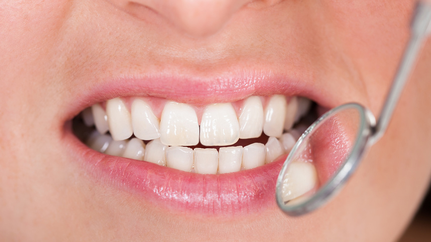 Болезни зубов приводят к раку груди