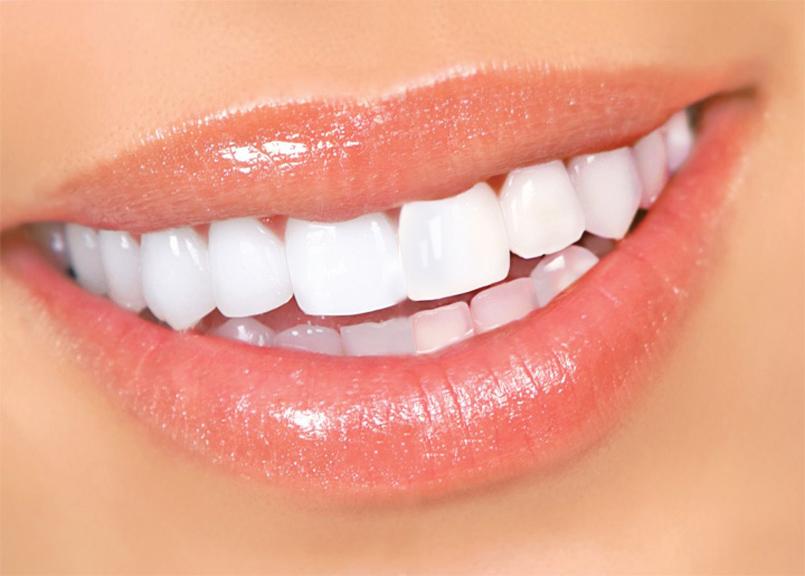 Топ 6 способов естественного отбеливания зубов