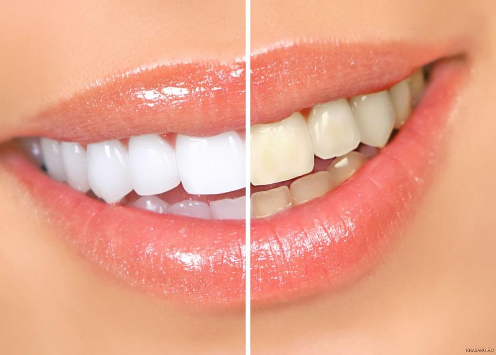 Как отбелить зубы: советы