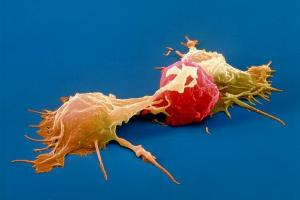 Рак можно определить по моче