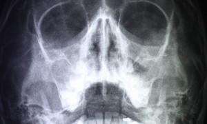 Стволовые клетки помогут устранить дефекты костей черепа