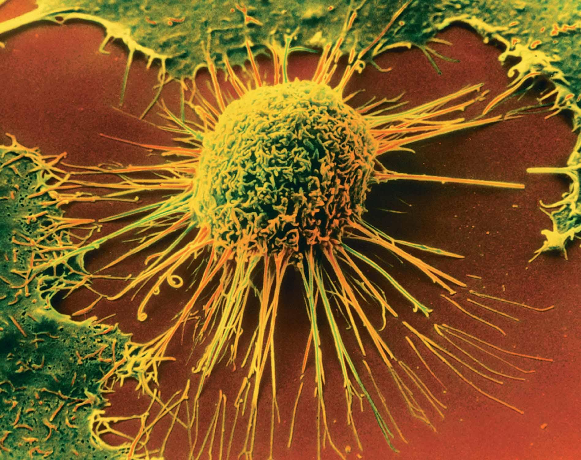 Фонд «Здоровье» обеспокоен ростом смертности от рака и снижением производства противоопухолевых ЛС