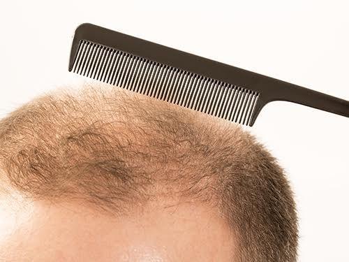 Описаны гены, связанные с выпадением волос в пожилом возрасте