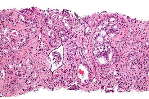 Ученые предложили новый тест для раннего выявления рака простаты