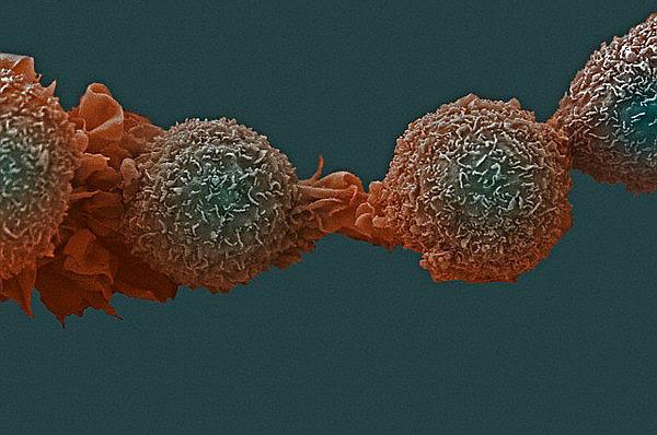 Новое открытие в лечении рака спасет жизни умирающих больных