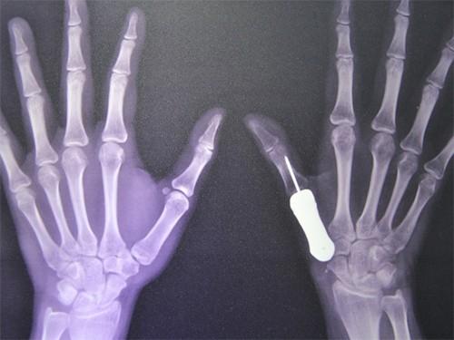 Разрушенную опухолью пястную кость заменили титановым протезом