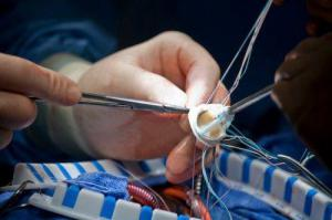 Женщины и мужчины по-разному восстанавливаются после операции на сердце