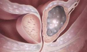 При раке предстательной железы уровень витамина D в крови – предиктор степени агрессивности опухоли
