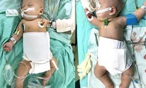 Китайские хирурги разделили сиамских близнецов, спланировав операцию с помощью 3D-печати