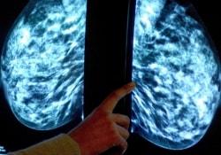 Эффективность лечения опухоли можно определить в день начала химиотерапии